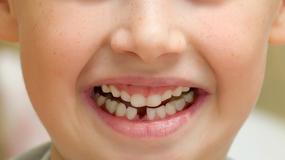 Gdy przyśni się wypadający ząb…