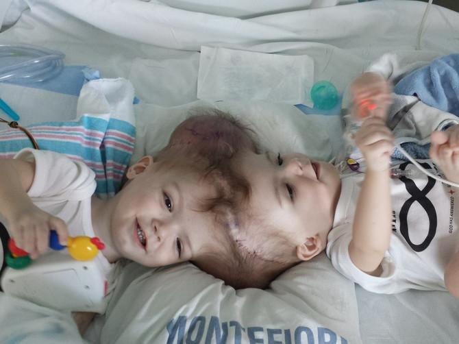 NOVI POČETAK Sijamski blizanci spojenih glava USPEŠNO operisani!