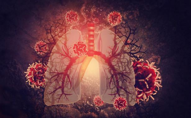 Płuca zainfekowane przez koronawirusa