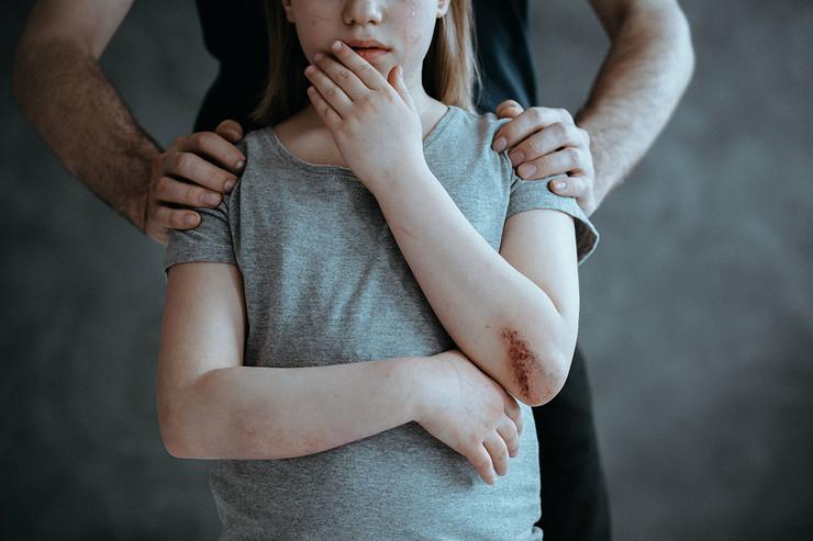 Dete devojčica silovanje seksualno zlostavljanje otmica pokrivalica