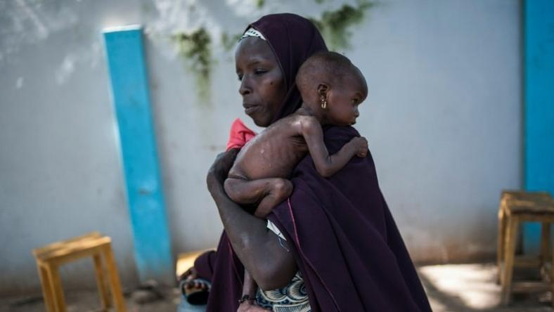 In July, the UN said nearly 250,000 children under five could suffer from severe acute malnutrition this year in Borno state