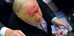 Krew polała się w parlamencie! Dużo zdjęć