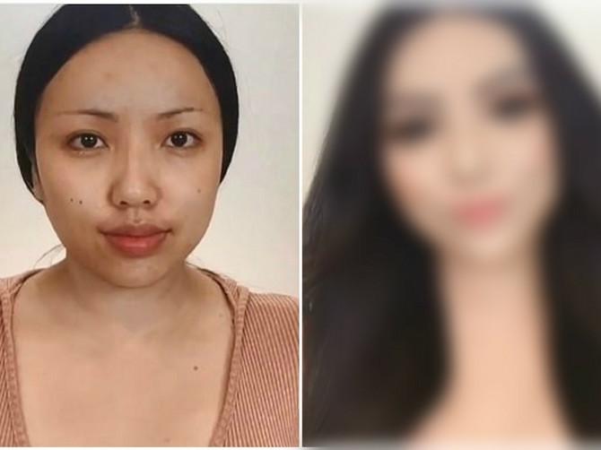 Plastična hirurgija U KUĆNIM USLOVIMA je zaludela žene širom sveta: Kad vidite rezultat ZINUĆETE OD ŠOKA