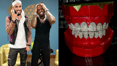 Diamond acquires new set of Gold Plated Grillz & he can't Keep Calm (Video)