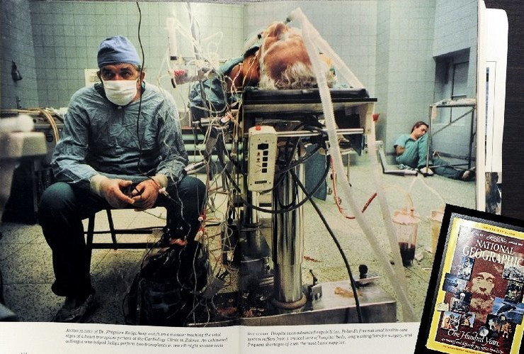 Transplantacija