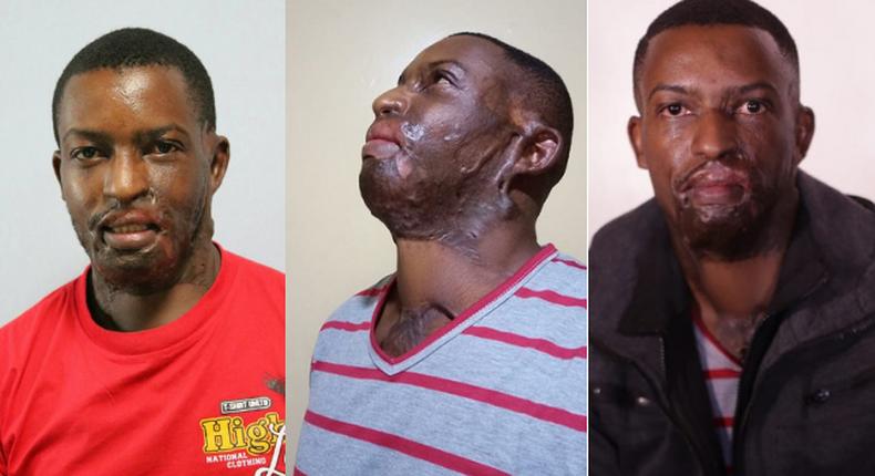 I went on Facebook Live to commit Suicide- Acid attack survivor Kelvin Kairo tells it all