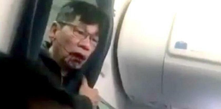 Awantura w samolocie. Stracił zęby, złamano mu nos