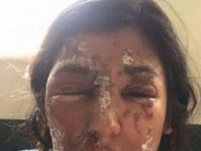 Manekenki je lice bilo uništeno kiselinom, koju je na nju prosuo mladić. Danas proslavlja rođendan i NEPREPOZNATLJIVA je!