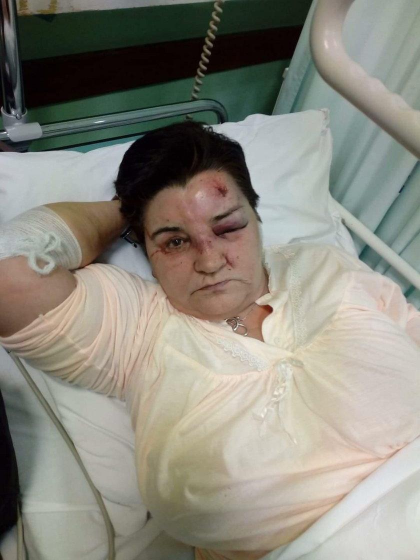 Rogowo: Pacjentka pobita w domu pomocy społecznej