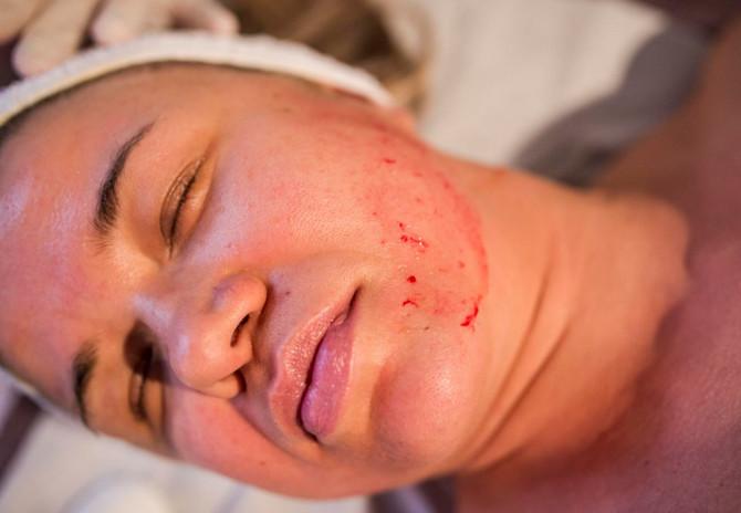 Tretman podstiče kožu na proizvodnju kolagena