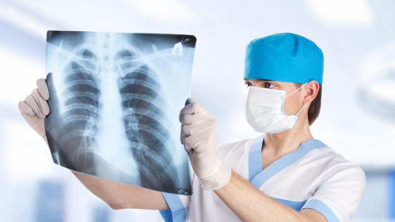 Lekarz ogląda RTG płuc