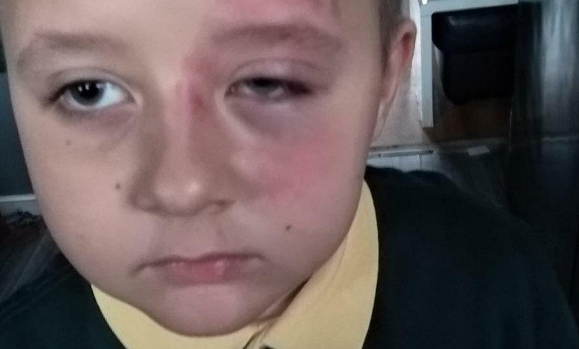 7-letni Gabryś brutalnie pobity w szkole. Rzecznik Praw Dziecka zapowiada interwencję