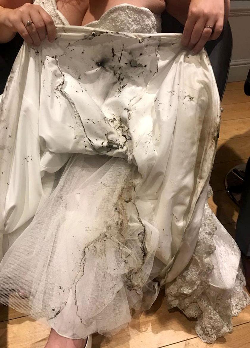 Rachel Beaufoy przeżyła koszmar na własnym weselu. Mało nie spłonęła żywcem