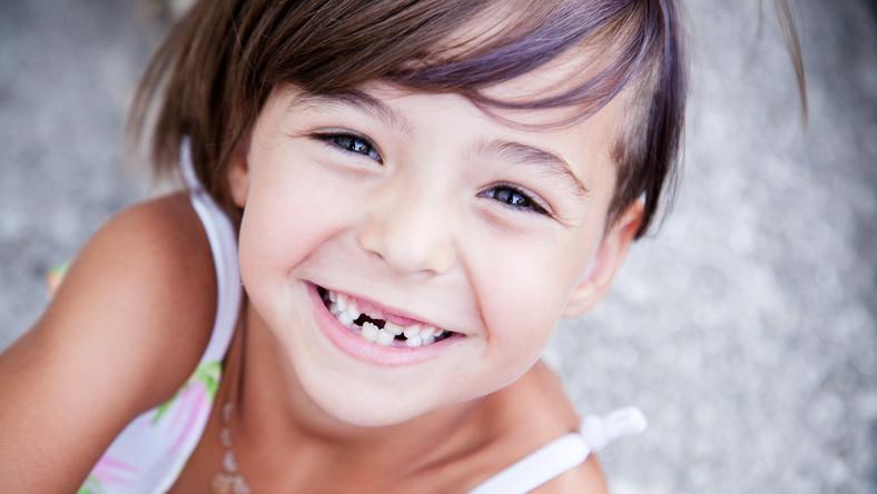 Zębom dziecka warto się uważnie przyglądać.