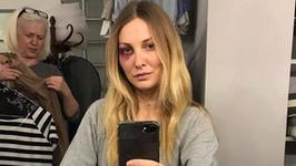 Joanna Moro uderzona w teatrze. Wiemy, kto podbił jej oko! To bardzo znana aktorka