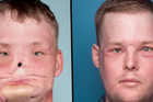 HTEO JE DA POČINI SAMOUBISTVO Kako izgleda život nakon transplatacije lica?