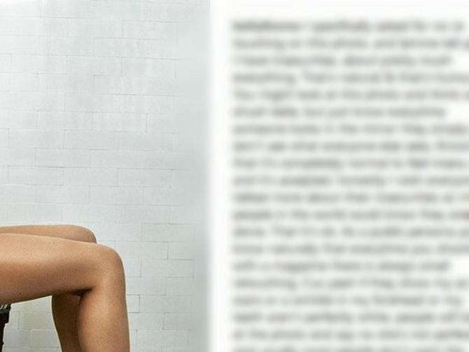 Sva u modricama i aknama: Bela se slikala gola da pokaže svima da nije savršena