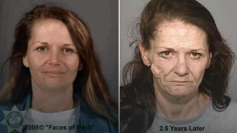 wypadanie włosów po amfetaminie