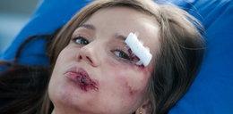 Anna Przybylska z podbitym okiem! Co się stało?