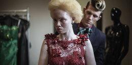 Kiedyś była szykanowana i poniżana, dziś jest modelką!