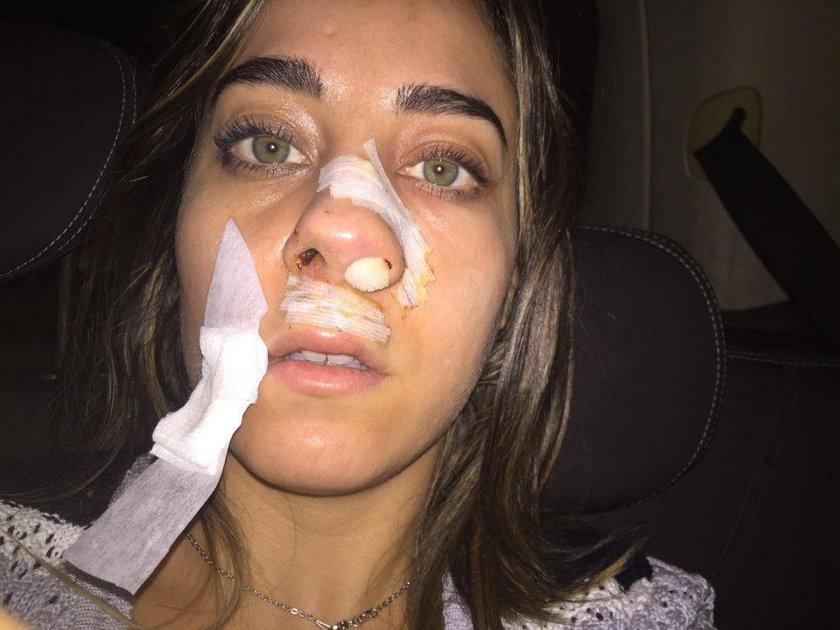 Gwiazda porno z poranioną twarzą. Co się stało?