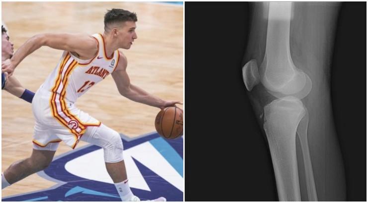 Bogdan - avulzija kolena