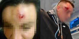 Atak na posterunek w Miliczu. Policja strzelała im w głowy