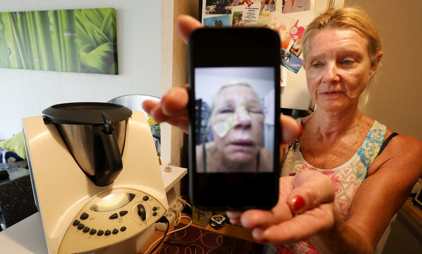 Annie Vandenbussche została poparzona przez robota kuchennego.