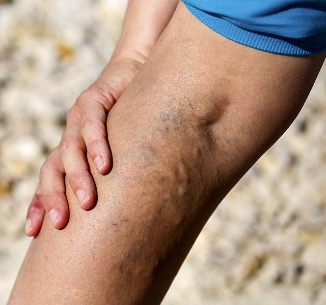 Kék vénák a lábakon zúzódások