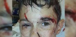Rottweilery napadły na głuchego 11-latka. Uratowała go siostra