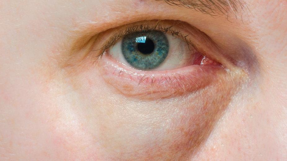 Opuchnięte oczy - o czym mogą świadczyć?