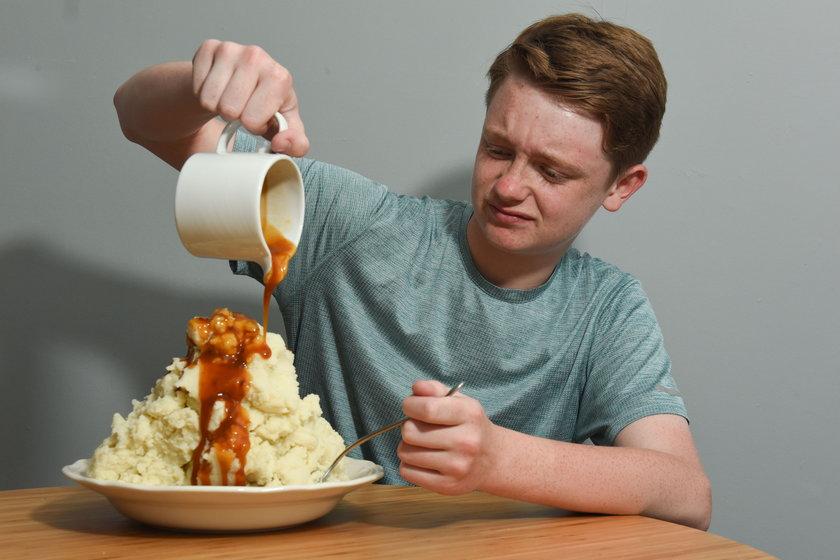 Wielka Brytania. 14-letni Woody Murphy przez 12 lat jadł tylko ziemniaki