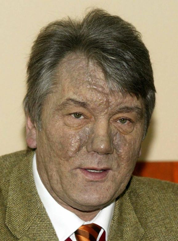 Unakaženog lica od dioksina: Viktor Juščenko