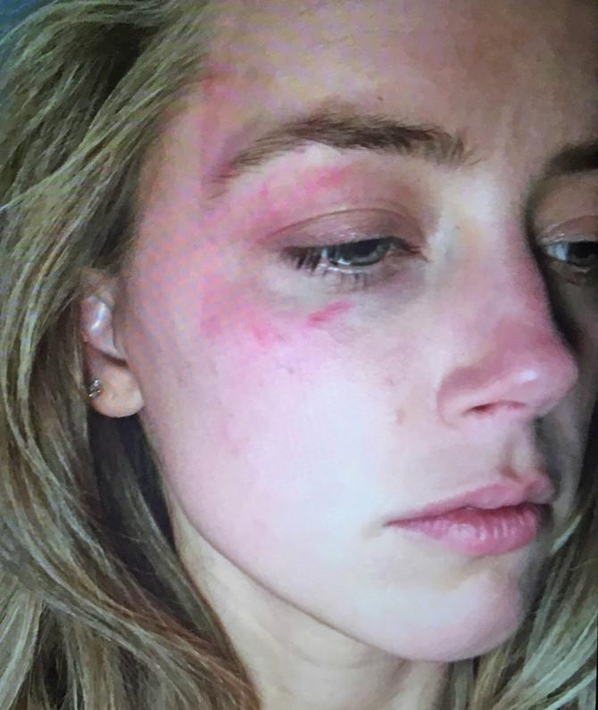 Modrice Amber Herd u vreme prvog prijavljivanja nasilja 2016. godine
