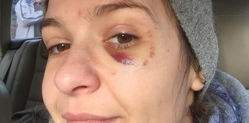 Joanna Koroniewska pokazała mocne zdjęcie z podbitym okiem!