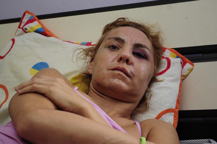 Pretučena zena02 foto Dusan Milenkovic