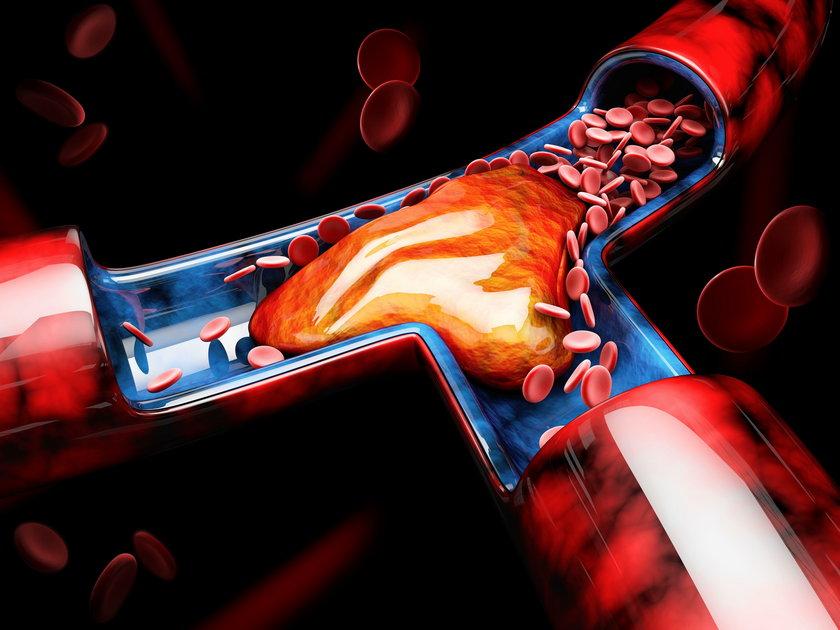 Zator płucny: zabija nagle 50 tys. Polaków rocznie. Jak mu zapobiegać?