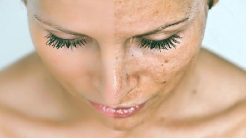 Dark spots also called freckles on our faces may be due to excess secretion of melanin on the skin.