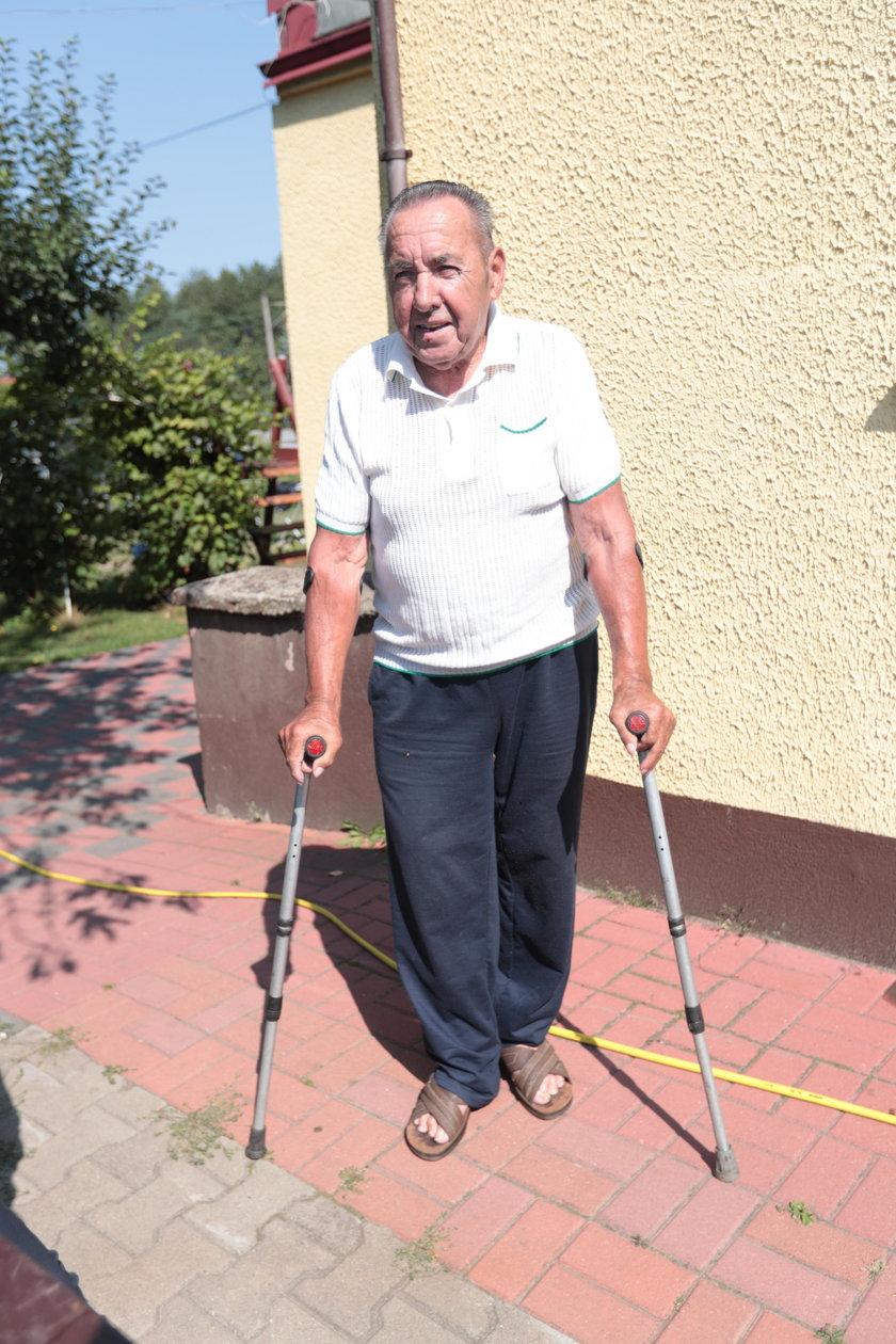 """Pan Alfons przeżył prawdziwy szok! """"Lekarze ukradli mi 5 cm nogi"""""""