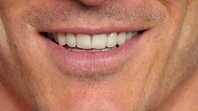 QUIZ: Czyj to uśmiech?