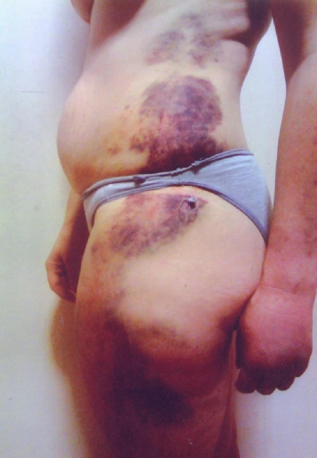 Horor fotografija žrtve nasilja