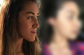 """""""Zbog vilice nisam mogla da JEDEM niti pustim kosu, a ljudi su BEŽALI OD MENE"""": Prvi put se nasmejala sa 23 godine kada je videla POTPUNO DRUGI LIK u ogledalu"""