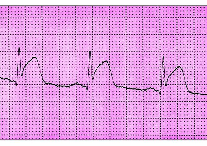 Zabeležene srčane smetnje kod pacijenata sa kovidom