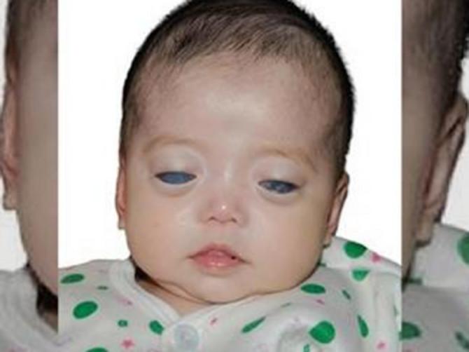 Devojčicu sa srebrnim očima napustila je rođena majka: A onda je njenu sliku videla OVA ŽENA i iste sekunde ZNALA JE O KOME SE ZAISTA RADI