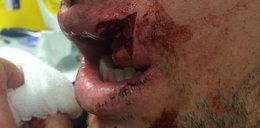 Masakra! Ma rozcięte usta, a mógł stracić zęby!