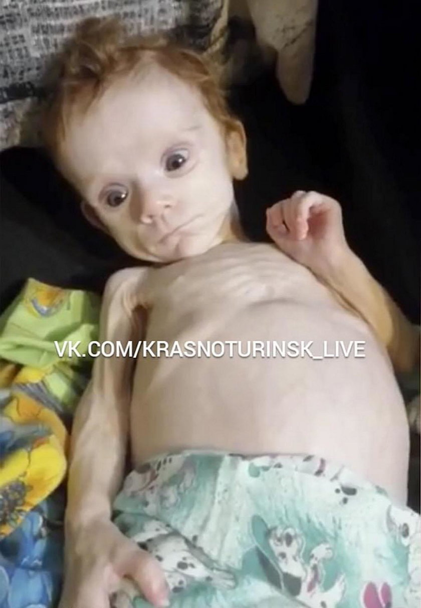 Skrajnie wychudzone dziecko znaleziono w szafie. Cudem uniknęło śmierci