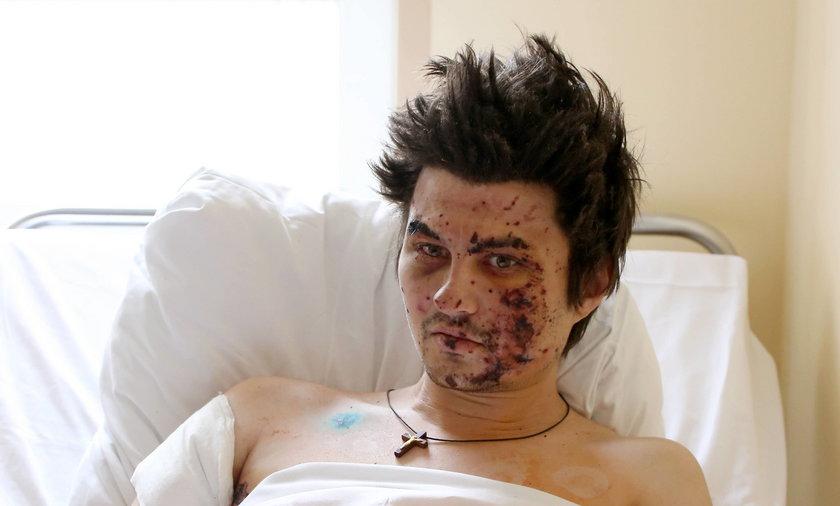 ranni Ukraicy leczeni w polskich szpitalach