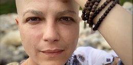 Przerażające wyznanie chorej aktorki: zaczęłam przygotowywać się na śmierć