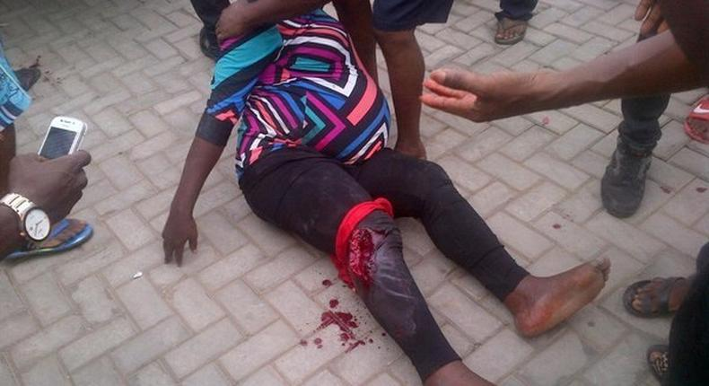 Pregnant woman wounded as Armed robbery attack banks in Agbara, Ogun State on November 19, 2015
