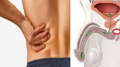 5 early symptoms of cancer in men